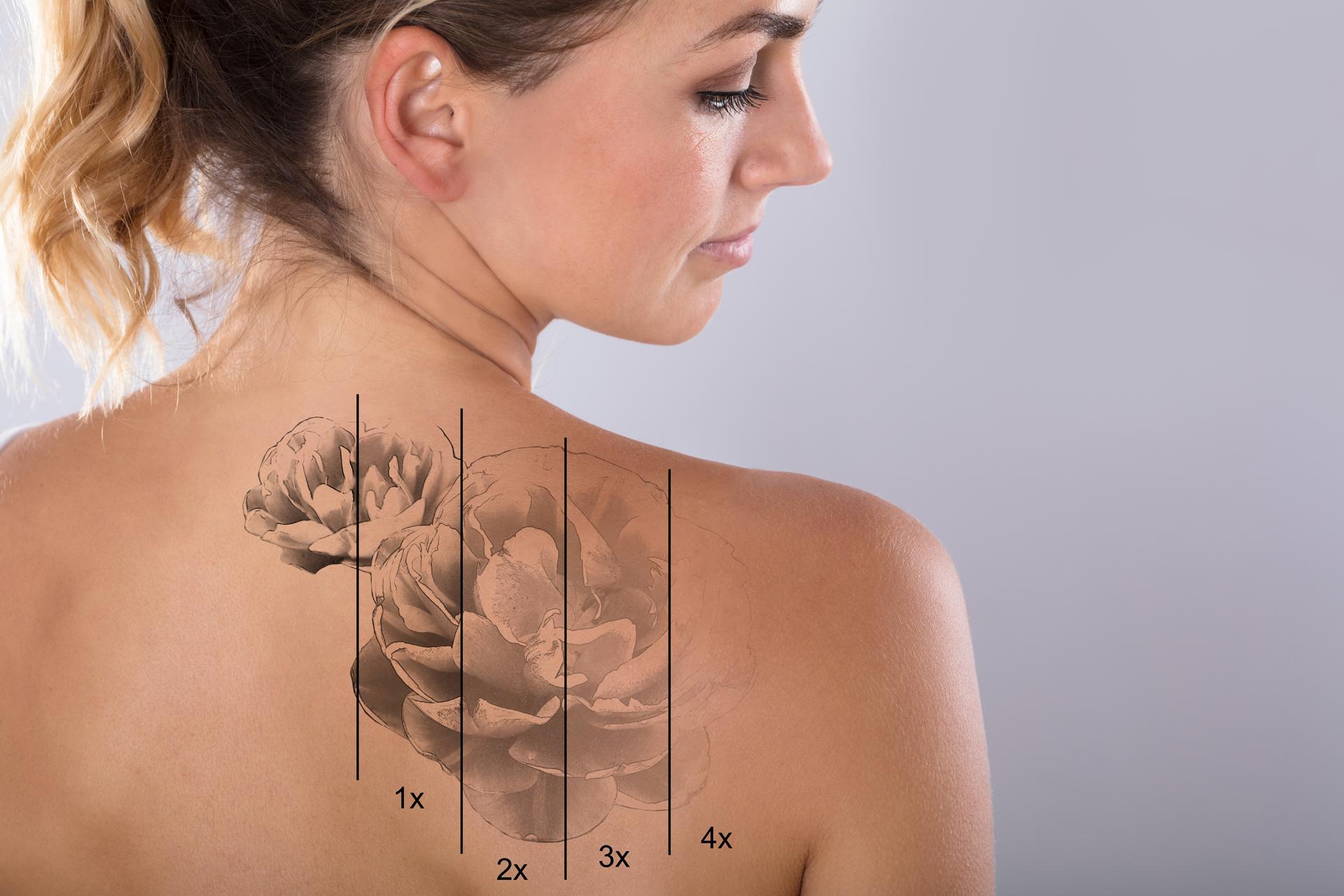 Laserowe Usuwanie Tatuażu I Makijażu Permanentnego Kielce